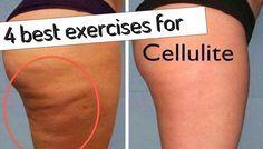 4 Best Exercises For Cellulite- leg exercises