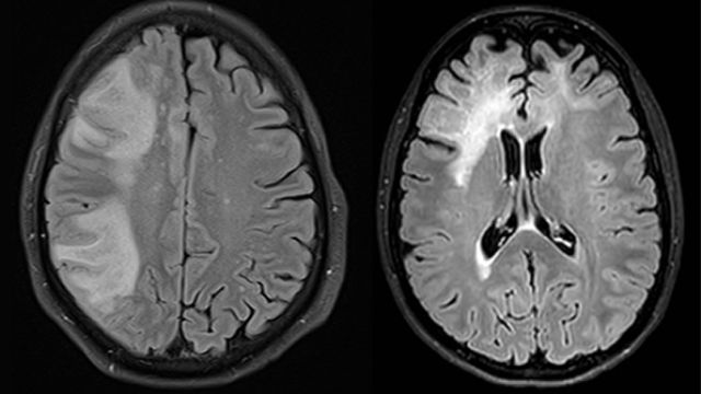 """Researchers from the University of Zurich (UZH) and the University Hospital Zurich reveal possible new treatment methods for a rare, usually fatal brain disease. Thanks to their discovery that specific antibodies play a key role in combating the viral infection, a vaccine against the disease """"progressive multifocal leukoencephalopathy"""" could now be developed."""