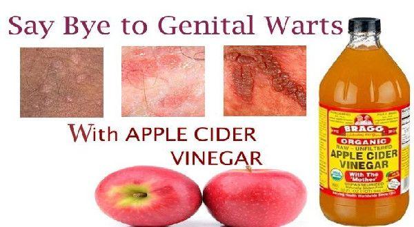 Apple Cider Vinegar For Genital Warts Removal | Apple