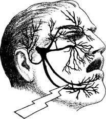 Trigeminal Neuralgia Support