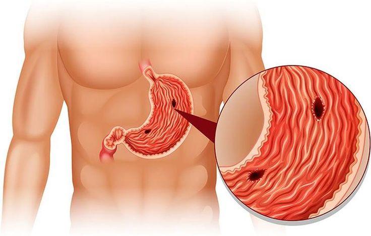 Gastritis – Symptome und Therapie der Magenschleimhautentzündung