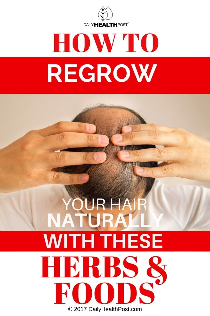 Check out this list of surprising herbs and foods that might help you stop male pattern baldness in its tracks.