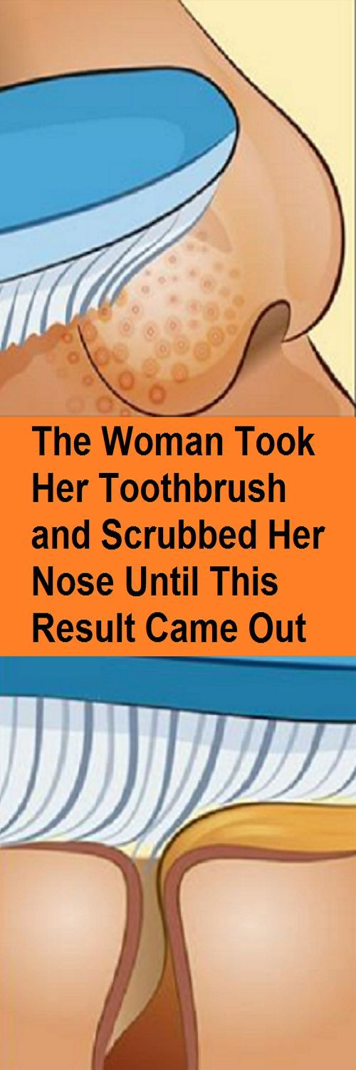 The Woman Took Her Toothbrush and Scrubbed Her Nose Until This Result Came Out.... Amazing Results