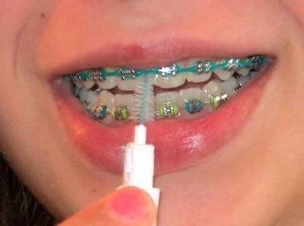 And clean your teeth three times a day with one of these…