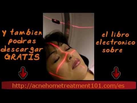 Láser Para Manchas de Acné, un tratamiento exitoso. - http://solucionparaelacne.org/blog/laser-para-manchas-de-acne-un-tratamiento-exitoso/