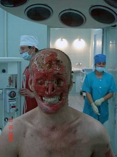 Chemical burn victim - The Weird Picture Archive
