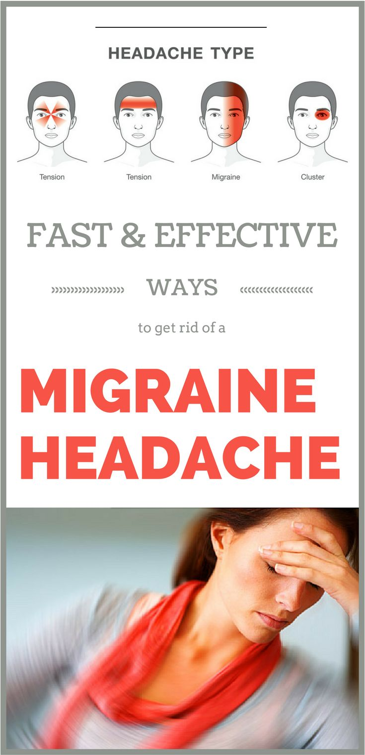 Migraines are characterized by a strong pulsating headache ...