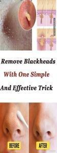 Remove Blackheads With One Simple And Effective Trick #MustHaveSkinCareProducts