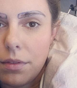 The true story of eyebrow transplants (WARNING: Not for the squeamish!)
