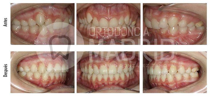 Clase II con sobremordida: Clase II esquelética y dentaria con mordida profunda, tratada con sistema Damon