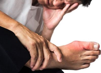 como se cura el acido urico en los pies como curar la gota del pie frutas para el acido urico