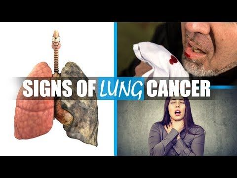 Symptoms of lung cancer - What are early signs of lung cancer you should not ignore - WATCH THE VIDEO   *** symptoms of lung cancer ***   Symptoms of lung cancer – What are early signs of lung cancer you should not ignore About 25 percent of people who have lung cancer will show no signs of lung cancer in its earliest stages. There are 4 lung cancer stages .Signs and symptoms of lung...