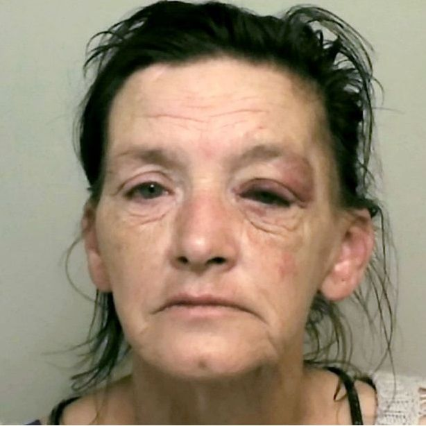 dog attack grand mother