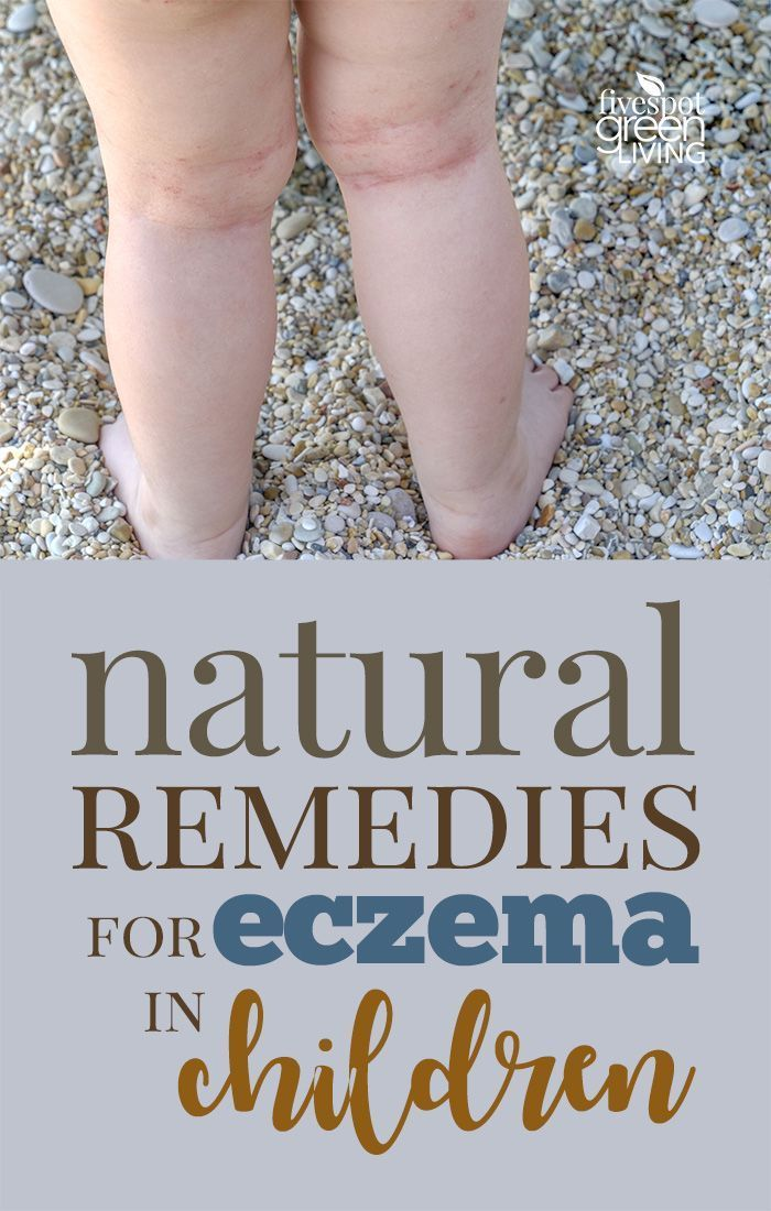 Natural Remedies for Eczema in Children that clear it up quickly and completely.