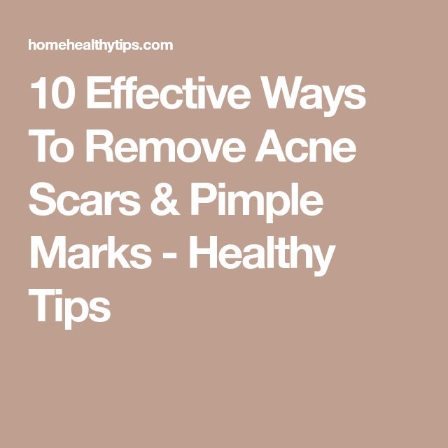10 Effective Ways To Remove Acne Scars & Pimple Marks - Healthy Tips