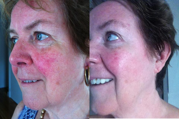 Rosacea treated by Skincerity  www.mynucerity.biz/mdmelissa