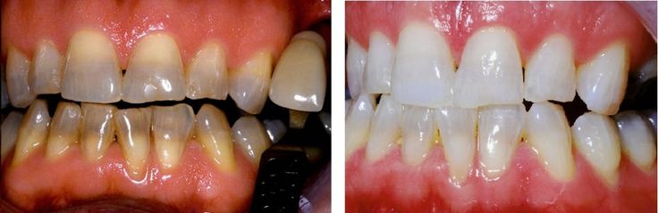 By sedation dentistry method. Our team treat you without pain, if you are facing teeth problems. We are providing anxiety-free dentistry for these patients.
