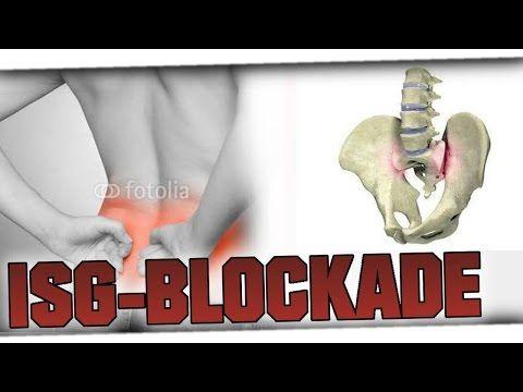 Schmerzen im unteren Rücken? ISG-Blockade selbständig lösen- Phillip Zwoll - YouTube