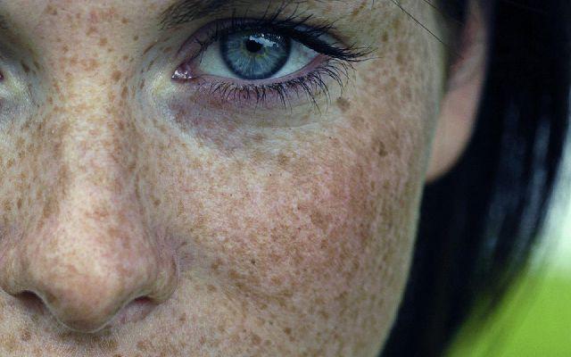 """Macchie della pelle e quanto incide il sole  : Settembre è il mese del bilancio, dopo il piacevole bagno di sole magari privo di protezioni adeguate, fa capolino l'arrivo di qualche nuova macchia e così i pazienti decidono di farsi visitare da specialisti per porvi rimedio. Ci sono due tipi di macchie cutanee, quelle che colpiscono prevalentemente dai 20 ai 45 anni e si definiscono di """"gioventù"""", e quelle che interessano una fascia di età..."""