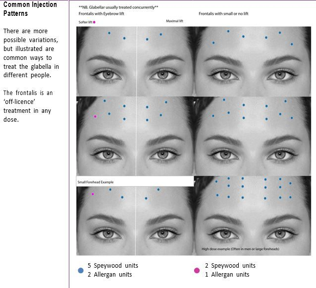 Forehead Botox injection pattern | Afraa in 2019 | Botox