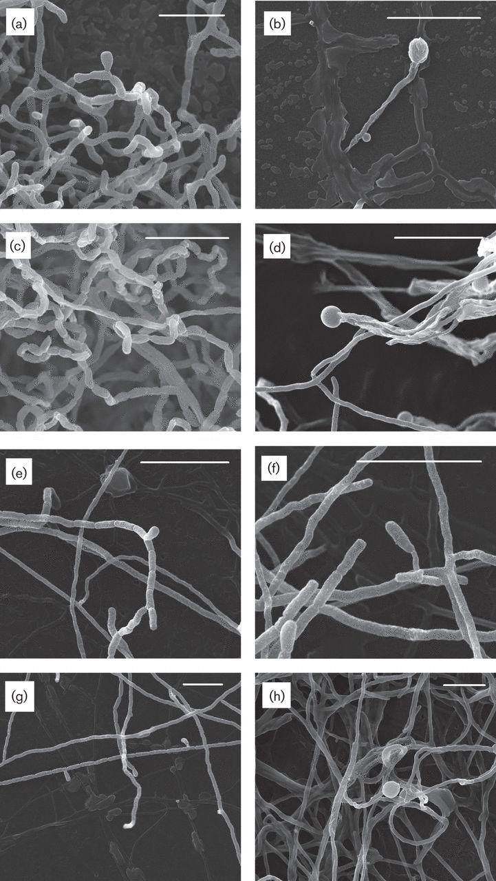 (a, b) Streptomonospora sediminis  (c, d) Streptomonospora nanhaiensis  (e, f) Streptomonospora arabica  (g, h) Streptomonospora halophila  [000.009.452]