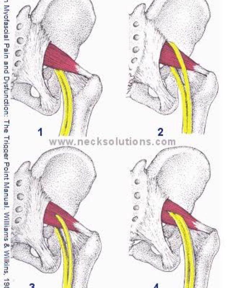 Síndrome do piriforme