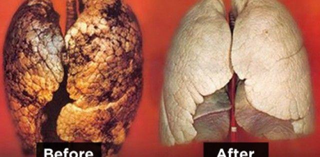 Kuřáci nejsou jediný, kteří mají problém s plícemi, se znečištěním ovzduším dnešního světa začínají mít dokonce i děti rakovinné bujené v plicích a nebo velké potíže s dýcháním. I,když je tento návod nastaven čistě na kuřáky, pomůže rozhodně všem a to bez vyjímky. Tady platí pravidlo že, pasivní ko