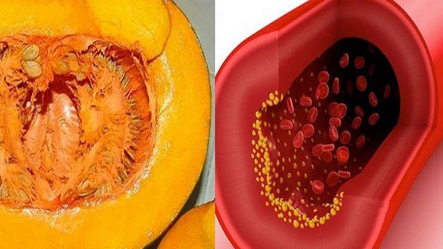 La sangre puede medir los niveles de colesterol, urea, triglicéridos, glucosa y lípidos, por eso es importante realizarse exámenes q...