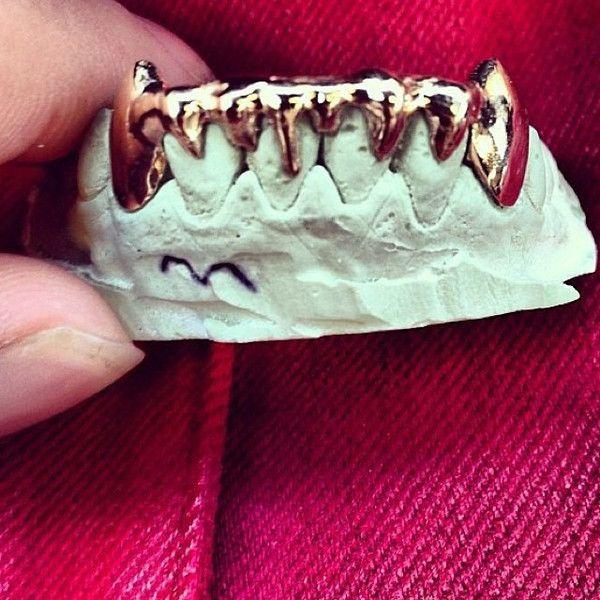 6 teeth, 14k gold, bottom row.
