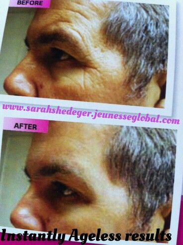 Instantly Ageless Amazing results click the pic to go to my facebook page to see some more amazing stuff!!