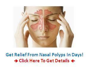 natural nasal polyps cure