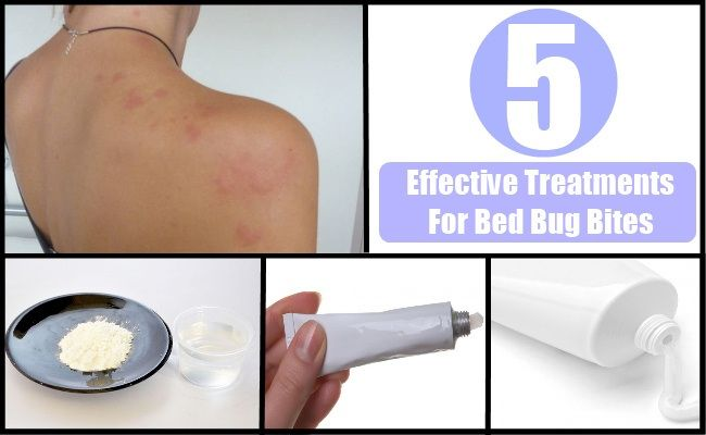 Do Natural Bed Bug Treatments Work