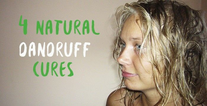 natural dandruff cures