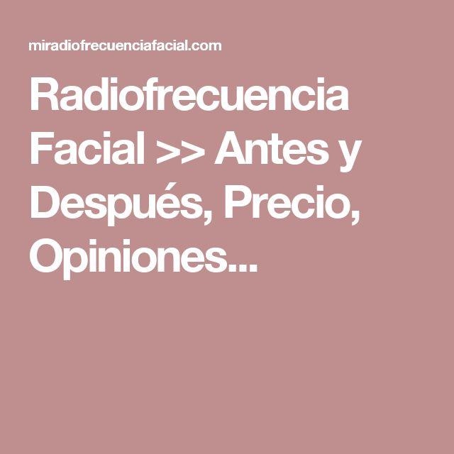 Radiofrecuencia Facial >> Antes y Después, Precio, Opiniones...