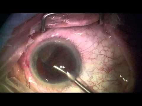 How are cataracts removed?