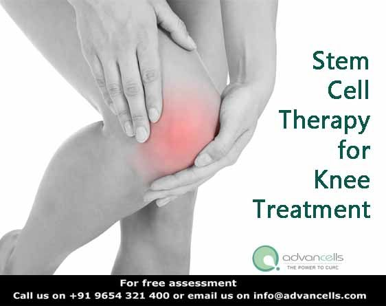 Can Stem Cell Therapy avoid the need of #Knee #replacement ? Stem cells being the natural healing mechanism of our body can grow worn out cartilages and tendons helping you to lead a normal lifestyle without unwanted surgeries.