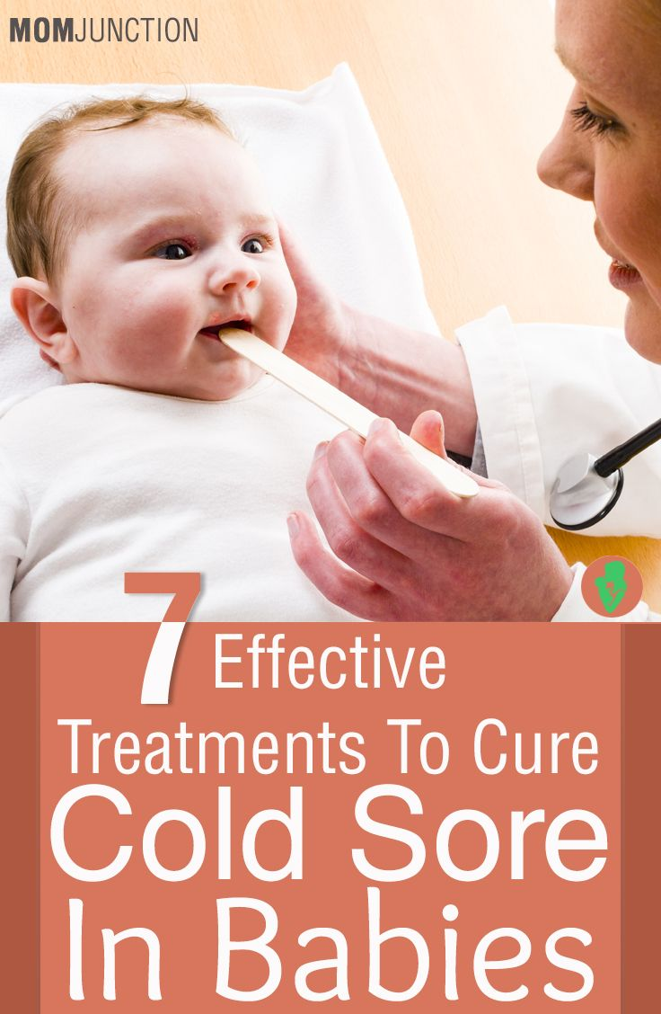 7 Effective Treatments To Cure Cold Sores In Babies Cold