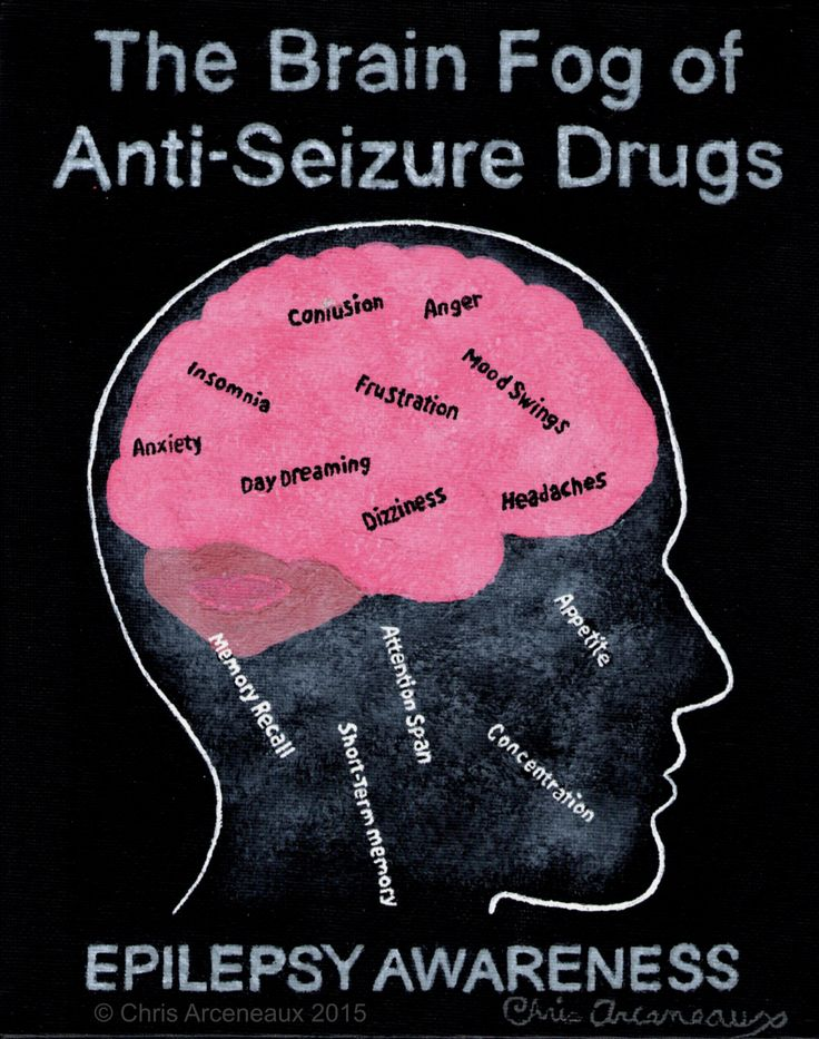 Epilepsy Awareness #5 Brain Fog  ASDs help to control seizures but they do have terrible side effects that we have to live with everyday. The black words on the brain are some bad things that they add. The white words falling out of the brain are good things that they can take away. #EPILEPSY #AWARENESS