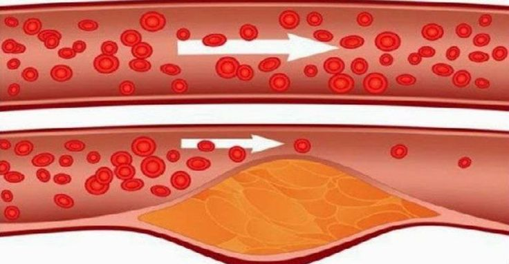 take-4-tablespoons-of-this-every-morning-and-say-goodbye-to-clogged-arteries-high-blood-pressure-and-bad-cholesterol
