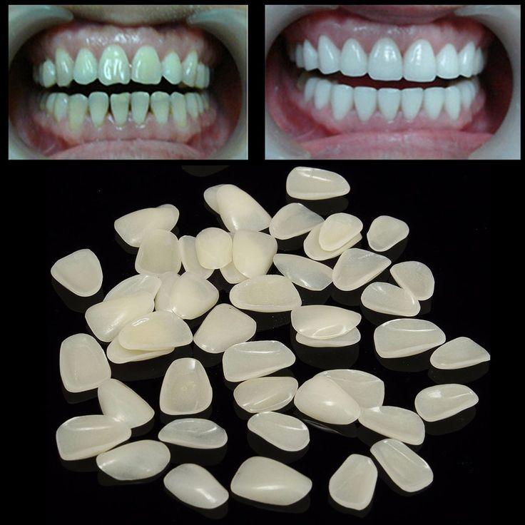 100pcs Dental Temporary Crown Resin Porcelain Materials Anterior Shade Teeth Molar Tooth Veneers Provisionals Ultra-Thin