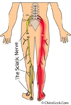 Tak przebiega nerw kulszowy - jeśli jest podrażniony może powodować nieprzyjemne objawy na całej swojej długości #rwa #kulszowa