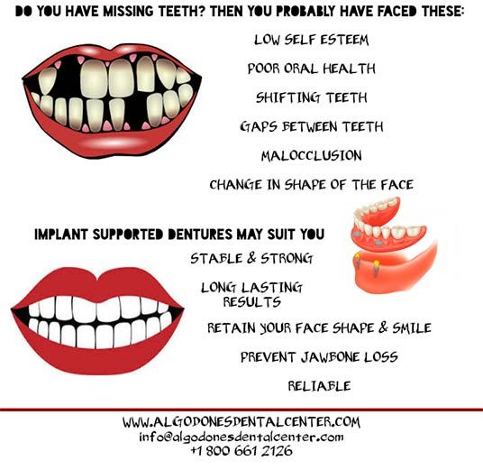 Dental Implant Quotes Cool 7 Best Dental Infographics Images On Pinterest  Dental Center