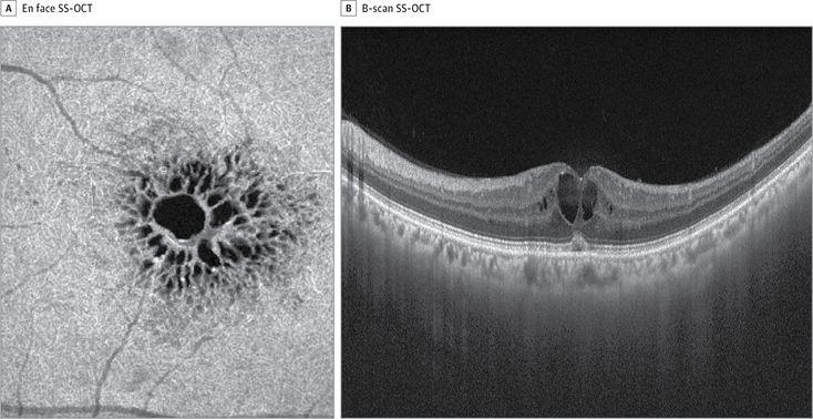 En Face Optical Coherence Tomography of Cystoid Macular Edema   JAMA Ophthalmol. 2016;134(12):e164648. doi:10.1001/jamaophthalmol.2016.4648
