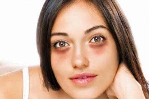 Os 8 Remédios Caseiros Para Eliminar Olhos Inchados   Dicas de Saúde