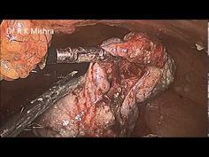 Laparoscopic Ovarian     Laparoscopic Ovarian Cystectomy for Right Sided Dermoid Cyst