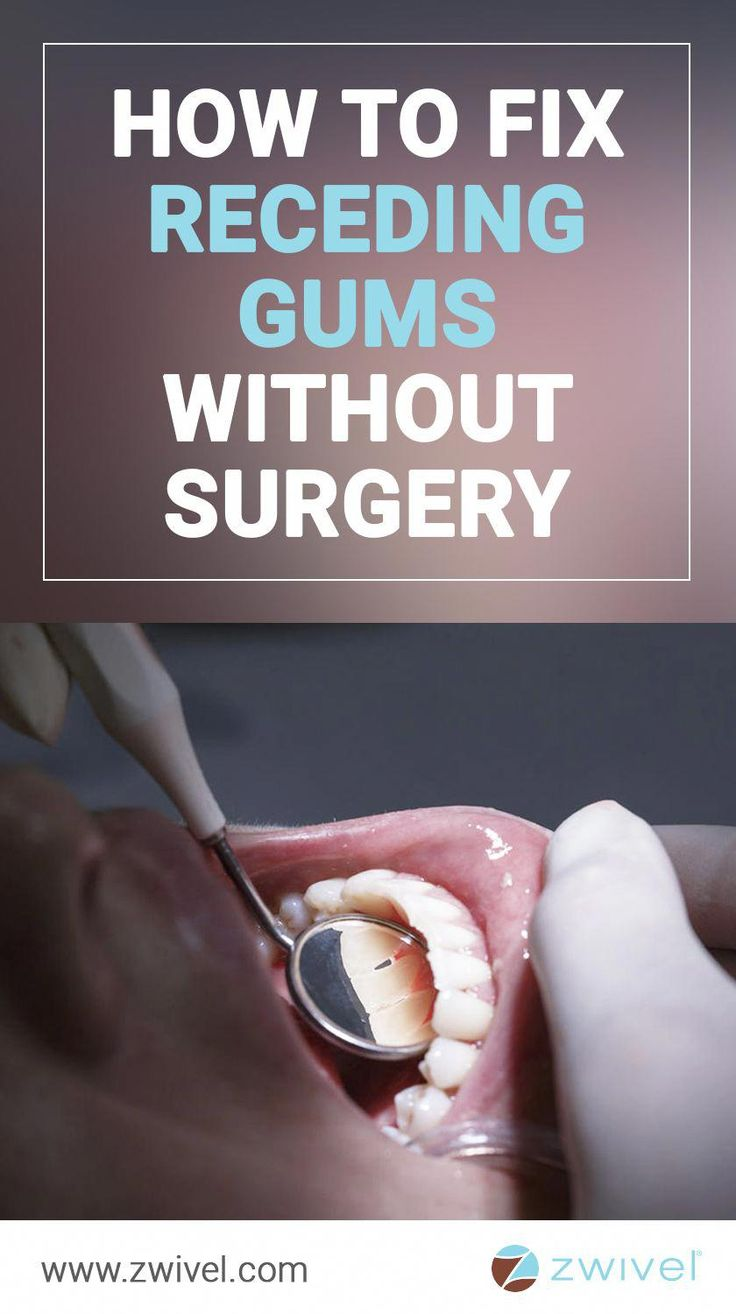 If youre after a selfieworthy smile but experience gum