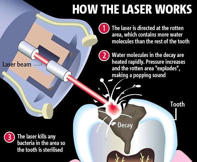 Dental Lasers can remove decay with no need for dental anesthetics like novocaine.
