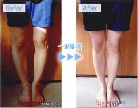 短期間で治す方法 | O脚治し方ガイド