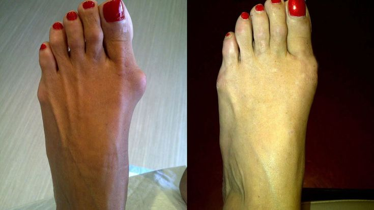 Please help! How to cure bunion on the feet? - Health.it