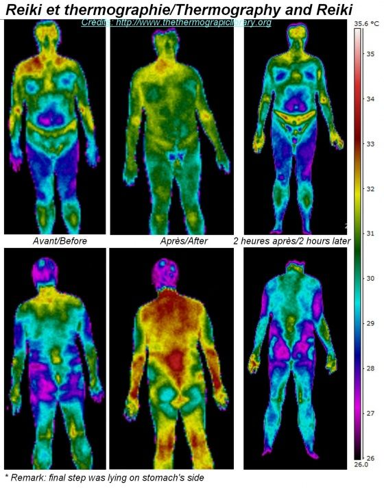 Reiki session seen in thermography Vision thermique infrarouge du Reiki